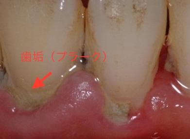 なぜ歯のクリーニングが大切か??